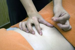 Person getting an acupuncture treatment for pain