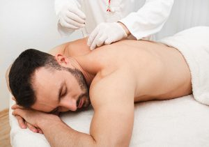 Reflexologist doing acupuncture to treat pain in a male person